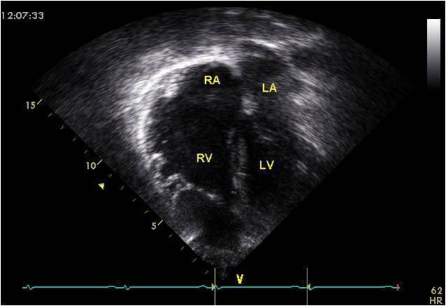 Heart Ultrasound